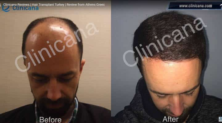 clinicana hair transplant review