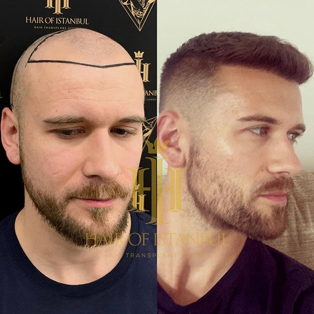 Hair of Istanbul review before after