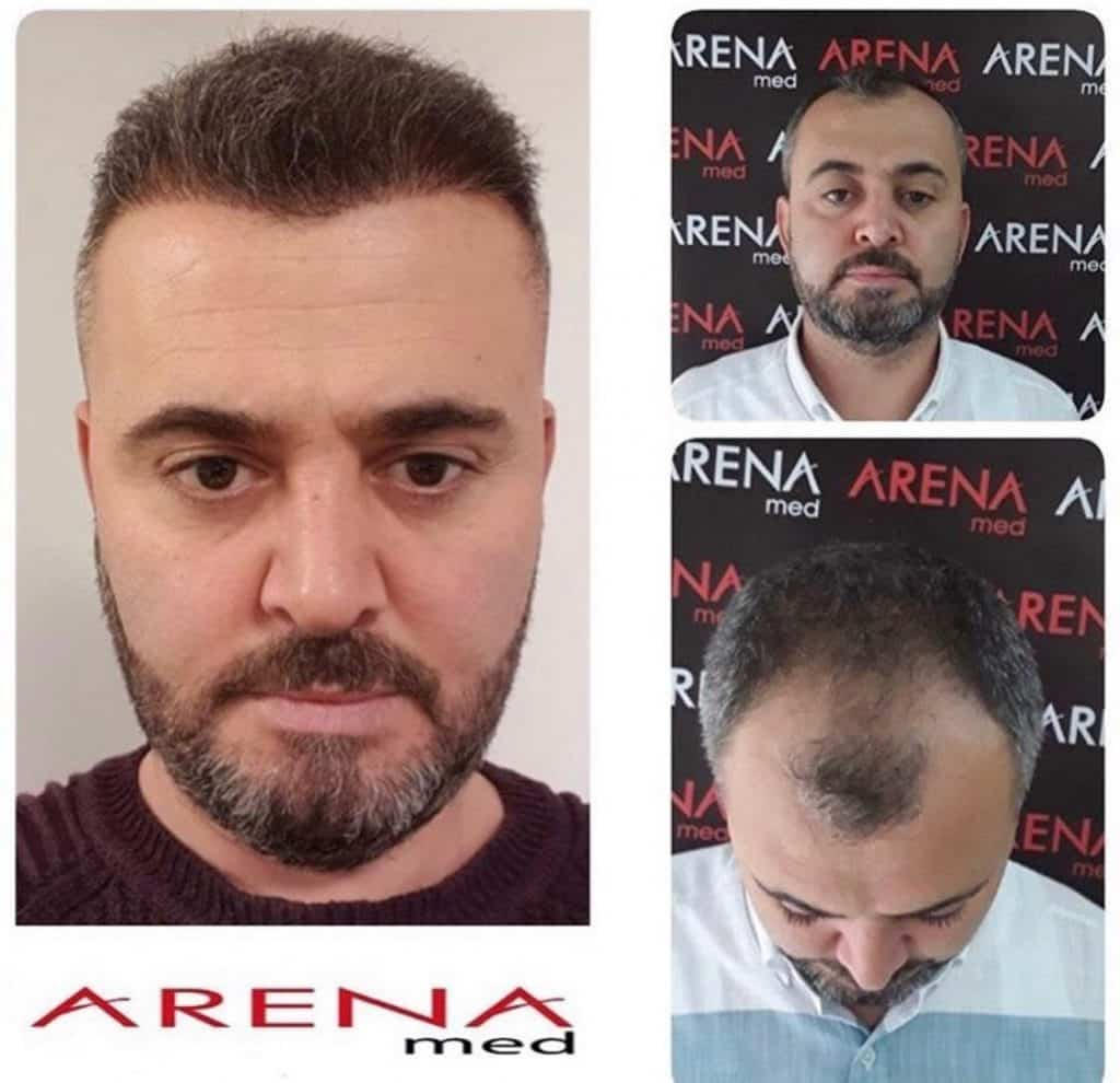 Arena Med Hair Transplant Results Before After Pictures