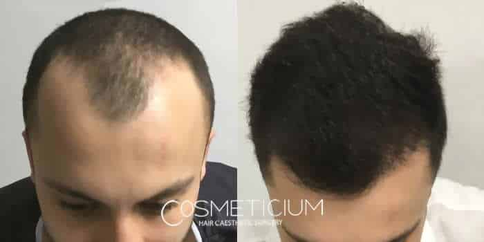 COSMETICIUM CLINIC review 1