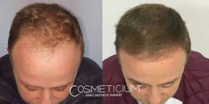 COSMETICIUM CLINIC review 2